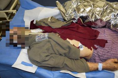 Polícia: Pri Osrblí našli nehybné telo muža, jeho totožnosť je zatiaľ neznáma 18+
